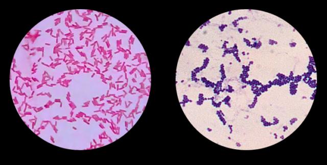 Psikoteknikoak: Antibiotikoak, bakterioak eta superbakterioak